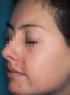 Acne Treatments For Nodular and Comedones