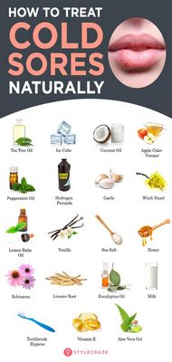 Some Cold Sore Remedies That Actually Work